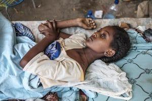 Etiópia Tigré polgárháború sebesült lány